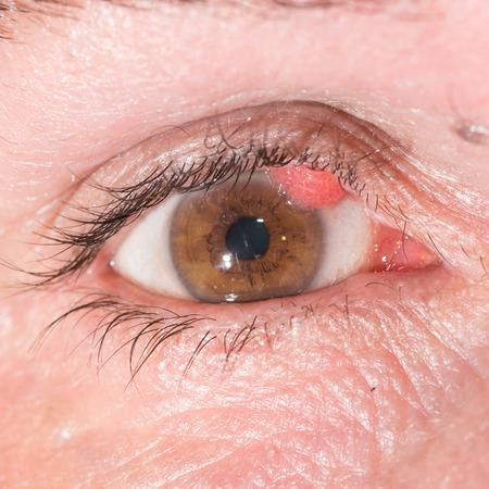 wart: close up of the papilloma during eye examination.