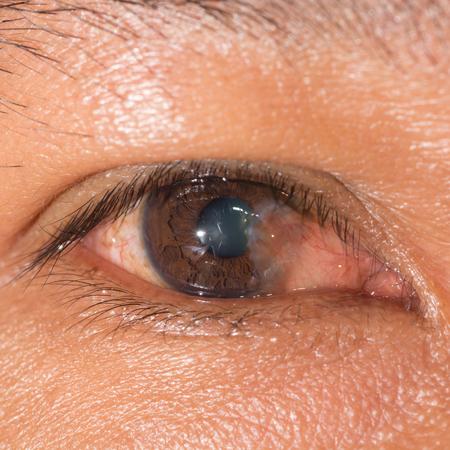 degeneration: close up of the advance pterygium during eye examination.