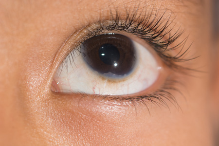 congenital: close up of the congenital corneal problem during eye examination. Stock Photo