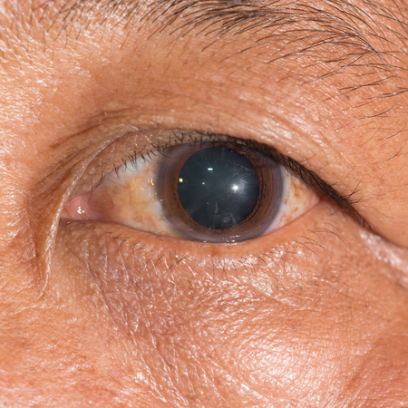 dilated pupils: close up of the dilated pupil during eye examination.