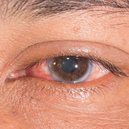 foreign bodies: close up of the corneal metallic foriegn body during eye examination. Stock Photo