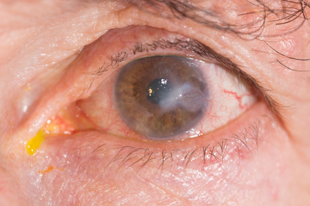 interstitial: close up of the interstitial keratitis during eye examination.