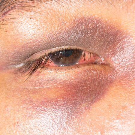 impair: close up of periorbital ecchymosis during eye examination.