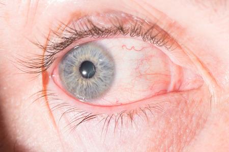 impair: close up of episcleritis during eye examination. Stock Photo