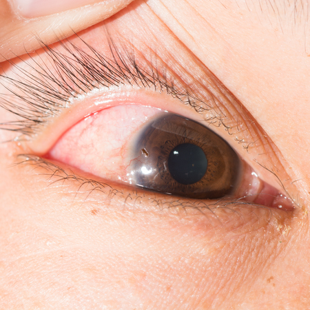 foreign bodies: close up of corneal foreign body during eye examination.