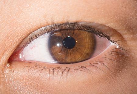 impair: close up of iris nevi during eye examination.
