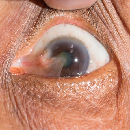 impair: Close up of advance pterygium during eye examination.