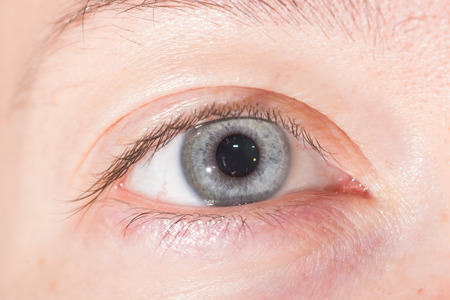 normal: close up of normal grey iris during eye examination.