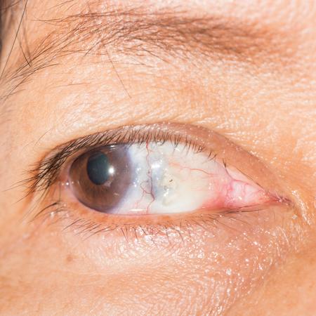 impair: close up of scleral melting during eye examination.