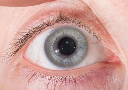 impair: close up of normal grey iris during eye examination.