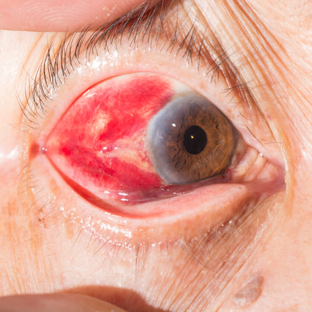 impair: close up of sub conjunctival heamorrhage during eye examination. Stock Photo