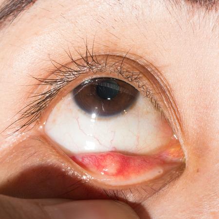 and eyelid: Close up of hordeolum at right loer eyelid during eye examination.