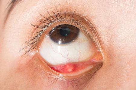 impair: Close up of hordeolum at right loer eyelid during eye examination.
