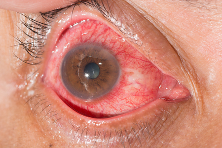 impair: Close up of ciliary injected during eye examination.