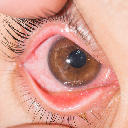 close up of acute viral conjunctivitis during eye examination.