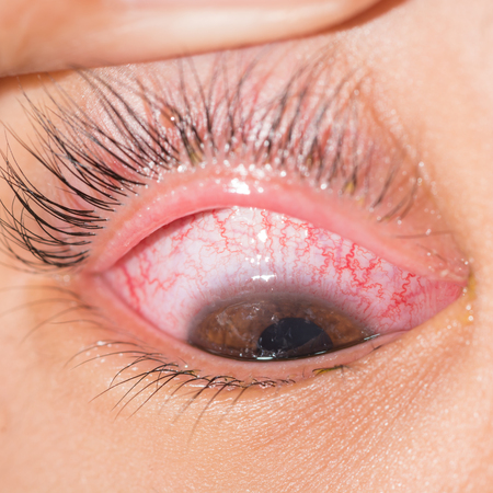 common vision: close up of acute viral conjunctivitis during eye examination.