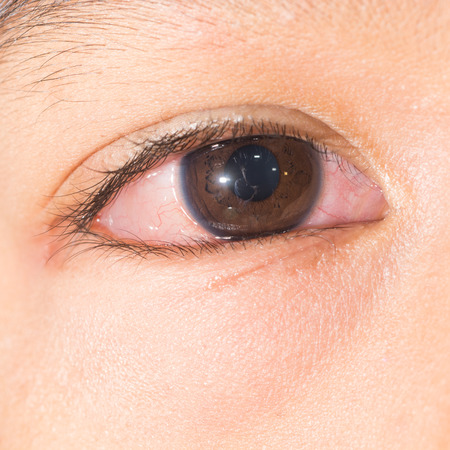 injected: Close up of chemosis injected allergic eye during eye examination.