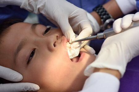 carious: Young asian boy during dental extraction.