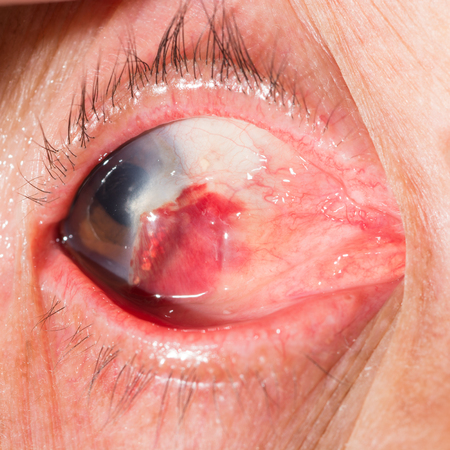 foreign bodies: Close up of the subconjunctival Hemorrhage during eye examination. Stock Photo