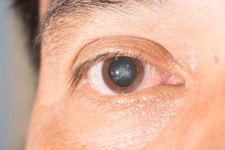 close up of cataract during eye examination.anterior, posterior sub capsular cataract. Archivio Fotografico