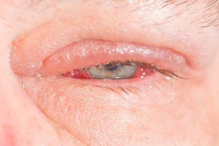 Close up of common eye infection and inflamnmation during eye examination.
