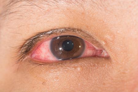 눈 검사 동안 일반적인 눈 감염과 inflamnmation 닫습니다.