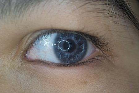 close up of heterochromoc iris during ophthalmic examination. Stock Photo