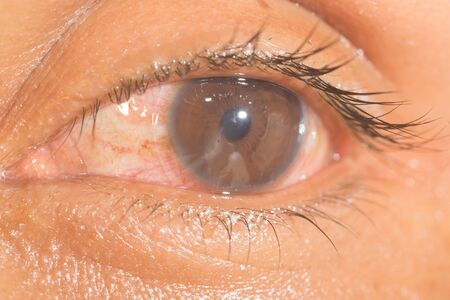 laceration: close up of traumatic eye during ophthalmic examination.