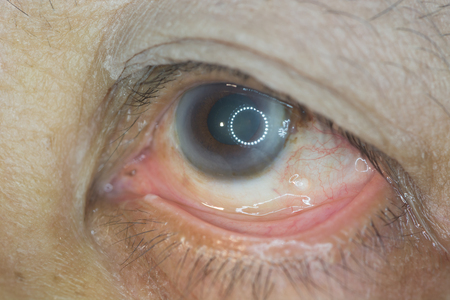 close up of dilated pupil during ophthalmic examination. Foto de archivo