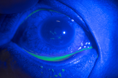 close up of corneal ulcer during ophthalmic examination.