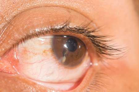 vision repair: close up of traumatic eye during ophthalmic examination.