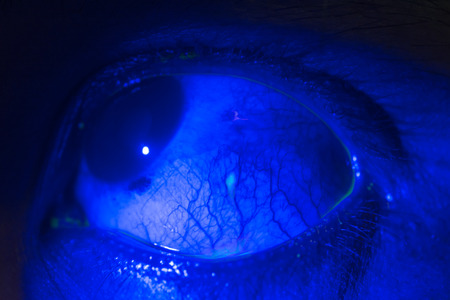 close up of traumatic eye during ophthalmic examination.