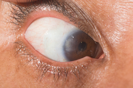 acute: close up of pterygium during ophthalmic examination.