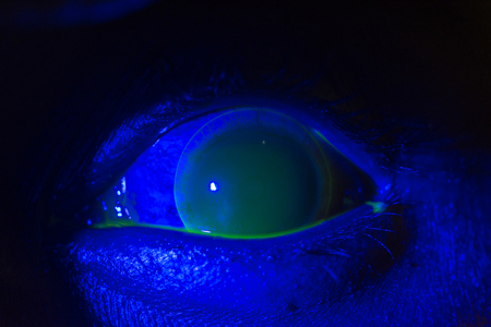 close up of corneal ulcer during ophthalmic examination. Stock Photo
