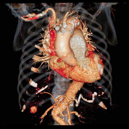 CT Cardiac 3D rendering.CT angiographphy