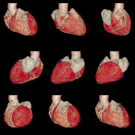 Muiti view of CT Cardiac 3D rendering.CT angiographphy. heart disease .from CT scanner.