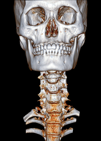3D rendering imaging of cervical spine (C-spine) front view.head and neck image by CT Scan . Clipping path.