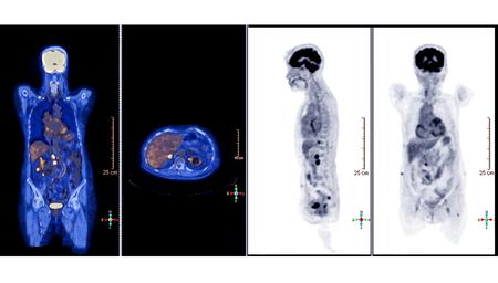 PET-Scan-Bild des Ganzkörpers Vergleich Axiale, koronale und Sagittalebene bei der Behandlung eines Leberzellkarzinoms eines Patienten mit einem PET-CT-Scanner. Rechteck HD-Größe. Standard-Bild