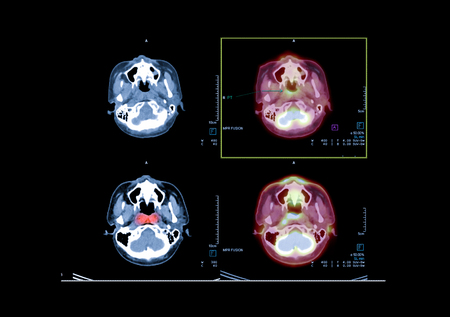 PET CT image of the brain showing CA nasopharynx or carcinoma of nasopharynx from PET CT scannner.