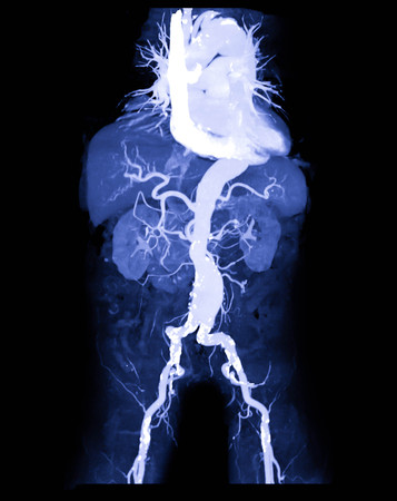 CTA abdominal aorta or CT angiography 3D mip image  showing abdominal aortic aneurysm medical call name AAA Banco de Imagens