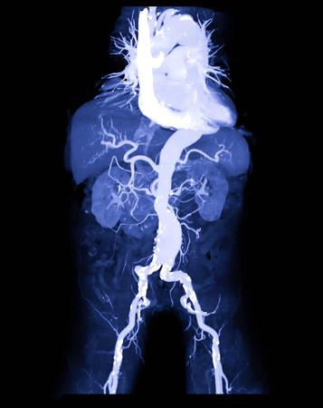 CTA abdominale Aorta oder CT-Angiographie 3D-Mip-Bild, das den medizinischen Rufnamen des abdominalen Aortenaneurysmas AAA zeigt