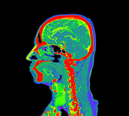 colorful of CT angiography of the brain or CTA brain Sagittal view . Stock Photo