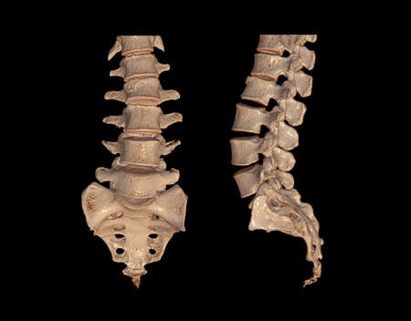 Collection of CT Lumbar or L-S spine 3D rendering image AP and Lateral view showing Compression fractures at L2. 3D illustration.