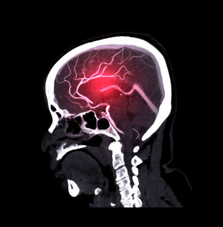 CTA brain or CT angiography of the brain Sagittal view . medical technology concept.