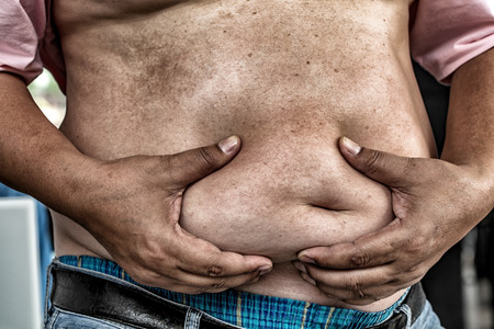 arteries: The Dangers of Belly Fat., Obese Man in Jeans Squeeze the Belly Fat. Obese Man is more likely to Clog arteries and diabetes.
