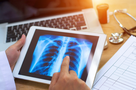 Arts toont resultaten aan oude patiëntenröntgenstraal van de longen, het roken van sigarettenproblemen Stockfoto