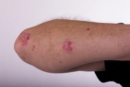 diseased: Hand diseased psoriasis