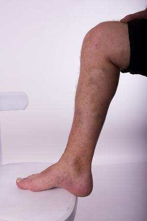 diseased: Mens diseased leg with phlebeurysm