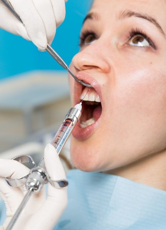 mouth cavity: The reception was at the female dentist. Doctor examines the oral cavity on tooth decay. Caries protection. doctor puts the patient an anesthetic injection. close-up of the patients mouth and squirt. Stock Photo