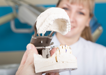 dental calculus: The reception was at the female dentist. dentist holding a dental casts